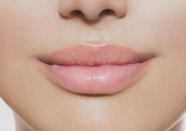 Rimodellamento labbra