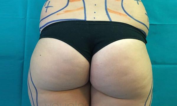 Before-liposuzione
