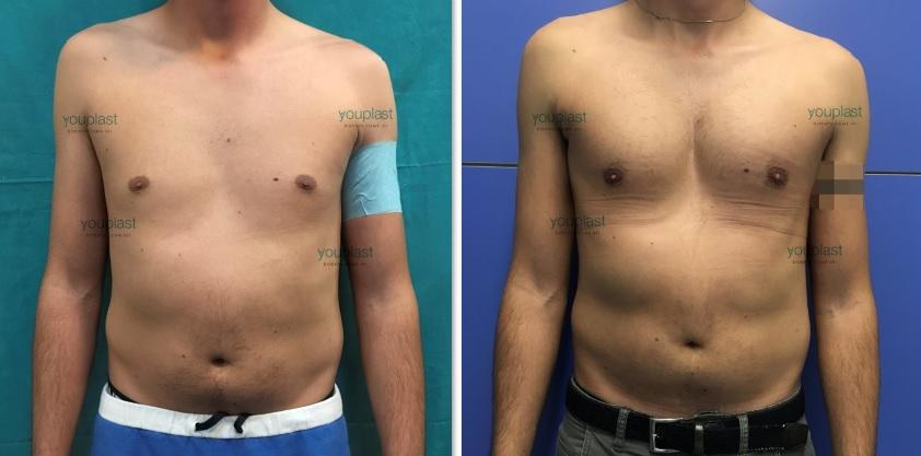 intervento di protesi pettorali prima e dopo